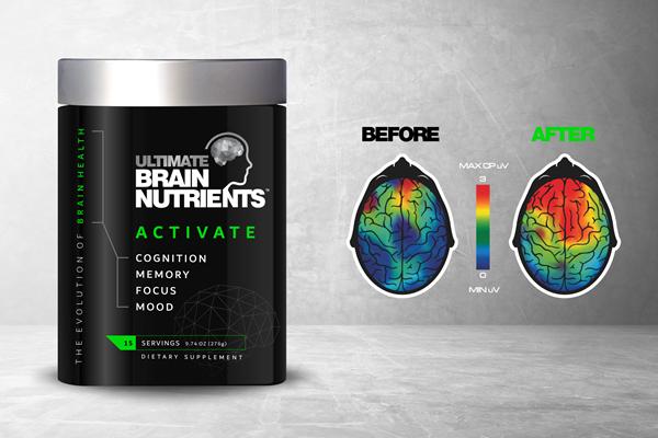 UBN Brain