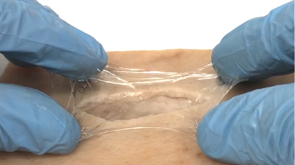 GelSana Therapeutics has designed and developed novel wound dressing gels that provide superior healing. The company's hydrogel systems offer unique wound healing properties that accelerate wound closure, generate strong epidermal layers post healing, and enable controlled delivery of therapeutics that could benefit certain types of wounds. https://gelsanatherapeutics.com/