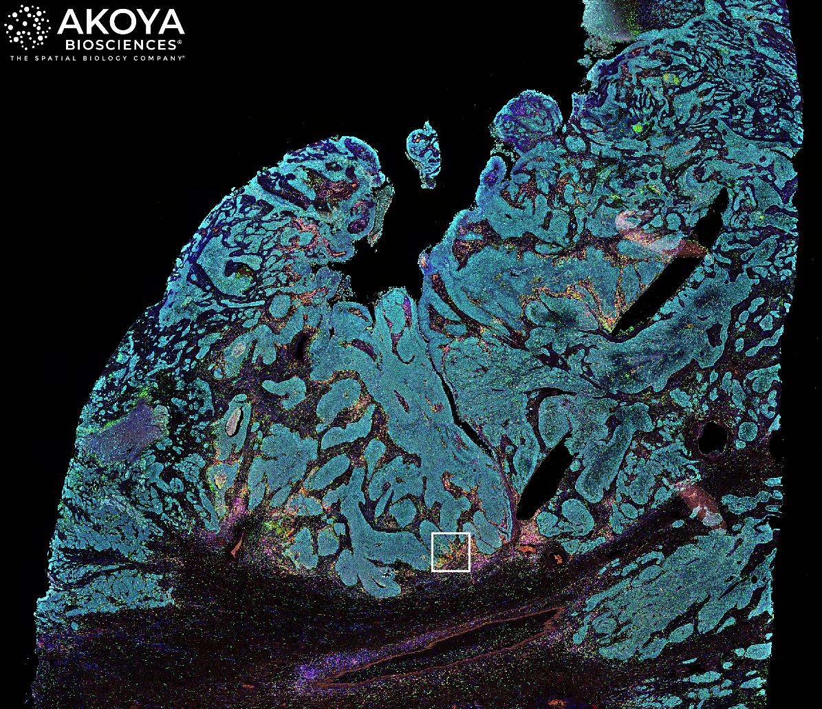 Lung Cancer Whole Tissue Phenoptics Image