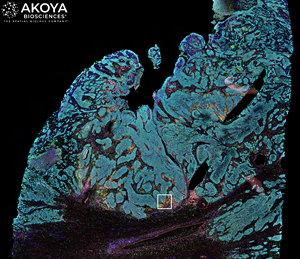 Akoya's Phenoptics™ platform captures high resolution images of whole tumor sections from patients, enabling researchers to study the spatial biology of the sample – i.e., how tumor and immune cells interact within the tumor microenvironment and influence response to immunotherapy. Different colors represent different cell types and biomarkers. The white box represents a zoomed in area for deeper microscopic analysis.