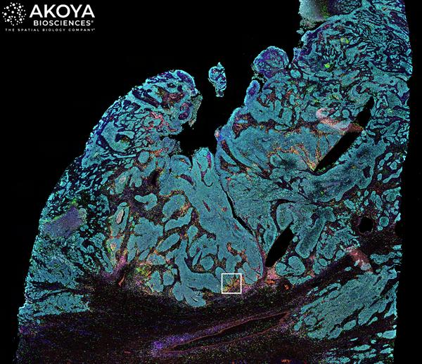 Image 2-Akoya Lung Cancer FFPE tissue-Whole Tissue Phenoptics Image