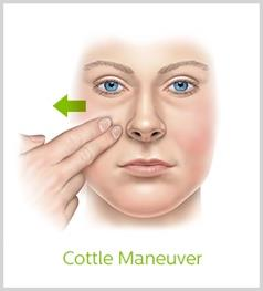Cottle Maneuver