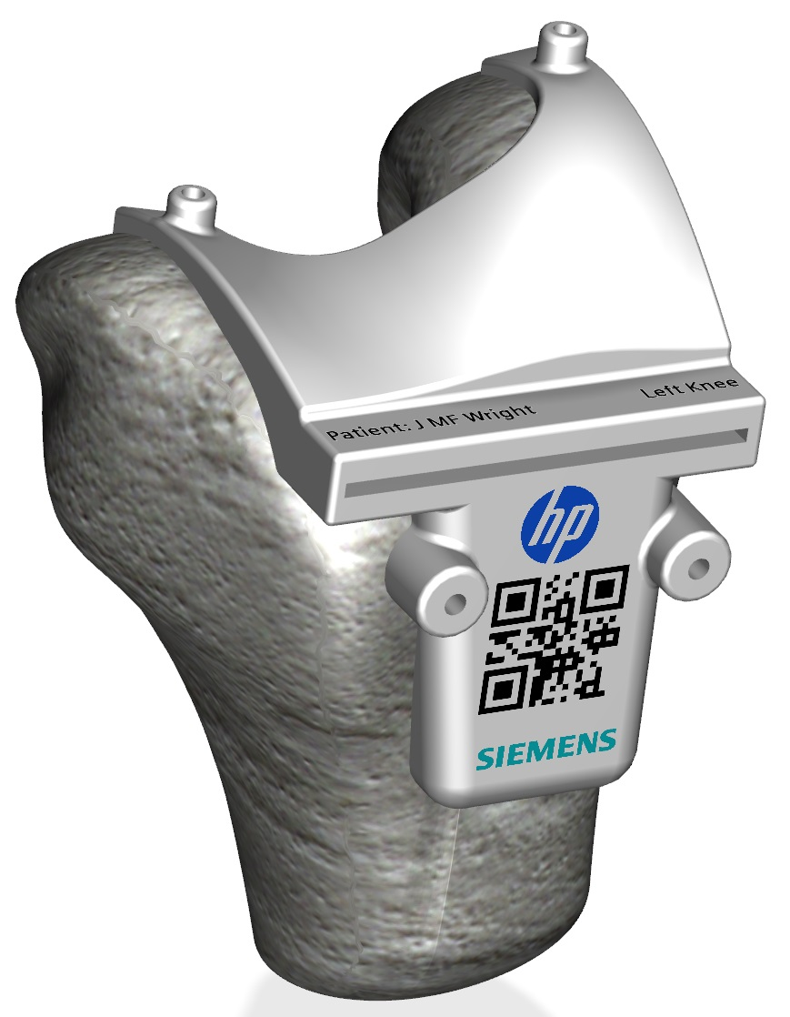 Color 3D printed surgical guide made possible by Siemens design software and HP Multi Jet Fusion.