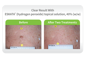 Before & After ESKATA™ Image – Clear Result
