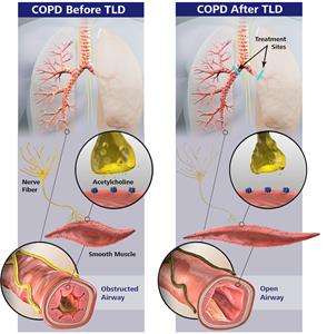 COPD before and after TLD with Nuvaira system.