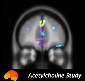 BrainHQ_Acetylcholine_Study_logo.png