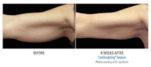 CoolSculpting Treatment Before and After Photos