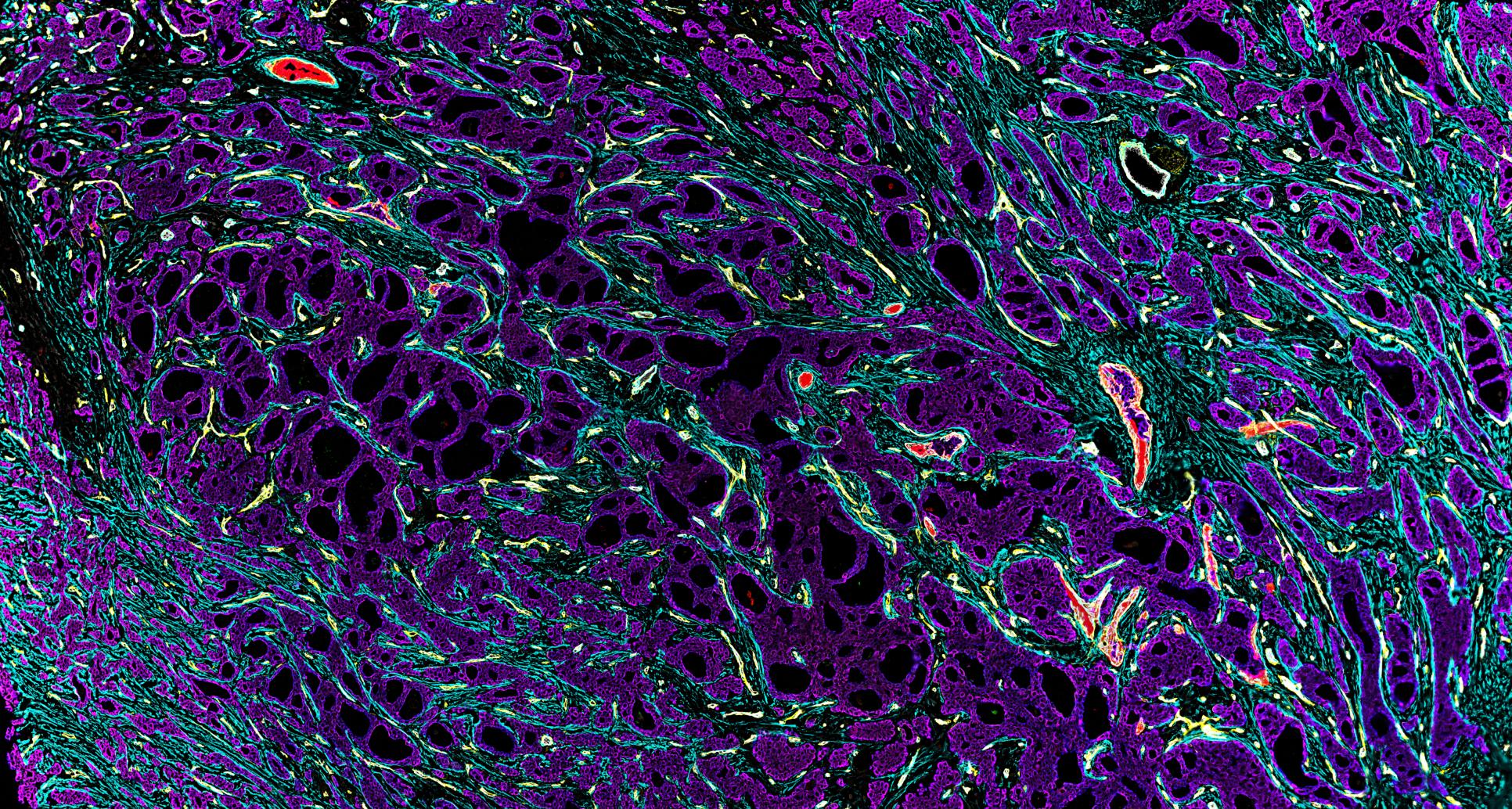 Breast Cancer CODEX Tissue Image