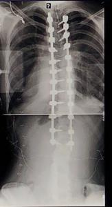 Post-Operative Scoliosis Xray