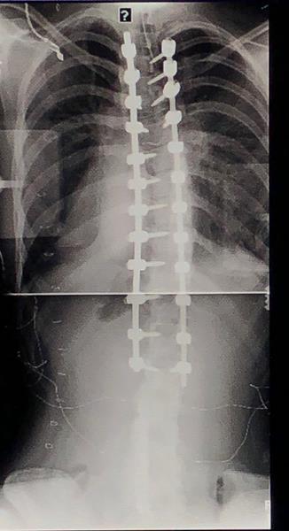 Post-Operative Scoliosis Xray