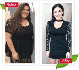 Hydrogen peroxide therapy weight loss