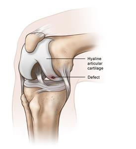 Knee Cartilage Damage