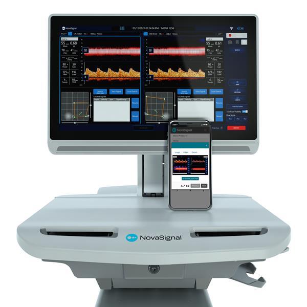 NovaGuide 2 Platform