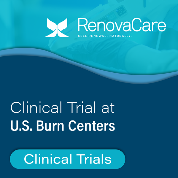 RenovaCare Clinical Trial to Start at U.S. Burn Centers