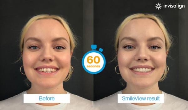 SmileView-branded