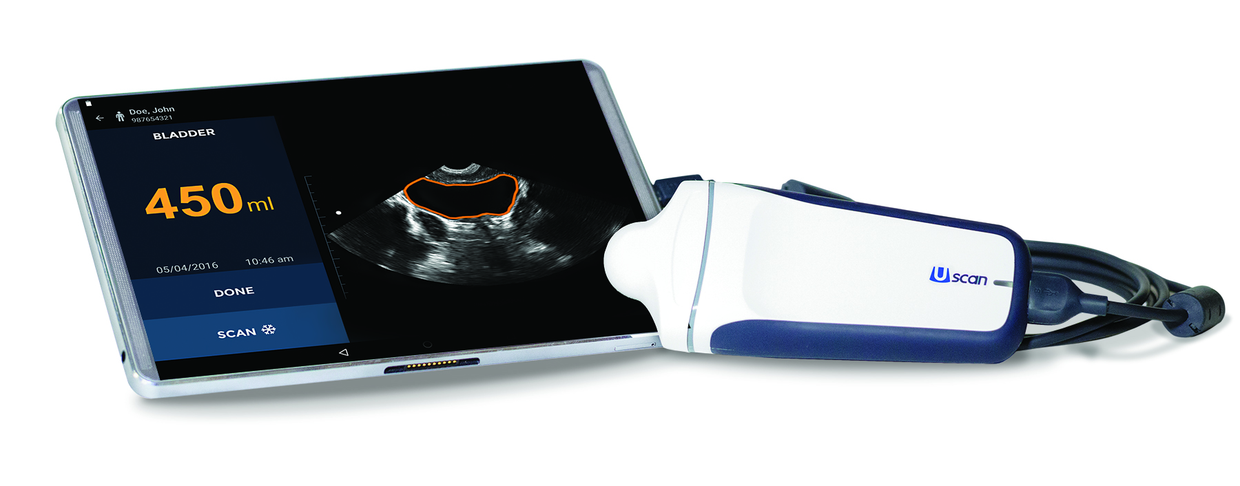 Signostics' Uscan intelligent ultrasound tool