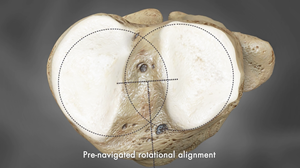 Rotational alignment based on each patient's anatomy