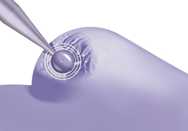 Targeted Intraoperative Radiotherapy (TARGIT-IORT) treatment for breast cancer