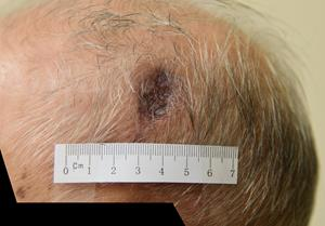 Patient A (Aged 93): 1 Week of Treatment