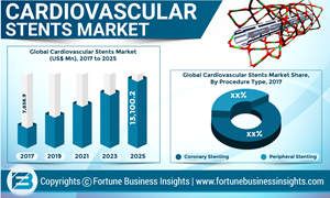 Abbott, Medtronic, and Boston Scientific Corporation leading the global Cardiovascular Stents market
