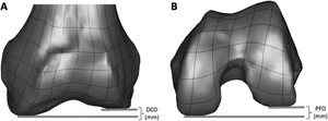 Femoral Offset Geometries