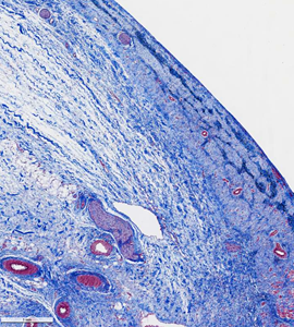 Lesion photomicrograph