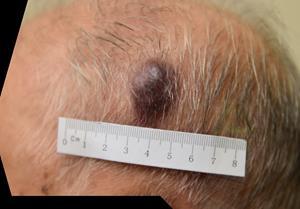 Patient A (Aged 93): Baseline