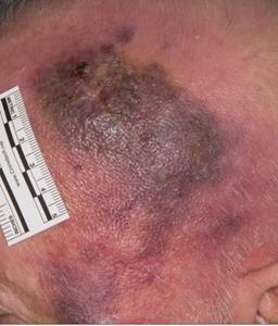 Patient B (Aged 82): Baseline