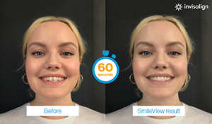 Align Technology's New SmileView Online Tool for Invisalign Treatment Simulation