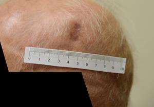 Patient A (Aged 93): 12 weeks of treatment